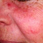 The Right Acne Rosacea Cure