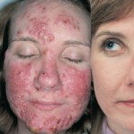 Acne Vulgaris Treatments