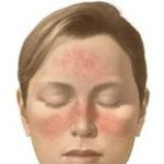 Is There An Acne Rosacea Cure?