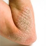 Psoriasis Causes. There Are Many Factors Read About Them Now.