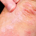Treatment For Psoriasis. You Have Many Options Available.