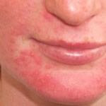 Dermatitis On Face