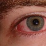 Allergic Conjunctivitis Symptoms