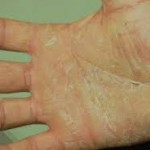 Some Facts About Hand Dermatitis