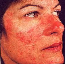 Acne Rosacea Cure