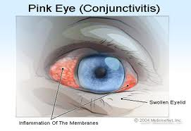 Conjunctivitis Pink Eye
