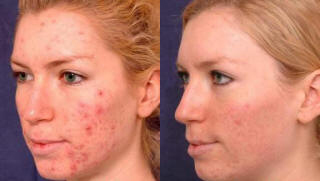 finacea acne