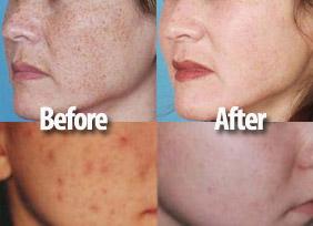 Rosacea Acne Treatment | Natural Health Magazine