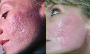 Acne Scarring   Natural Health Magazine