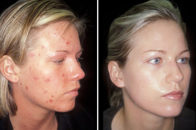 Acne Vulgaris Causes