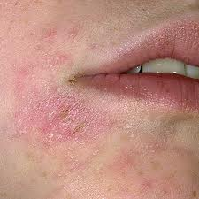 what causes eczema