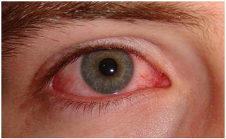 Recurrent Conjunctivitis