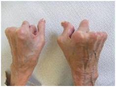 Arthritis and Rheumatism