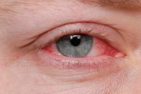 Eye Conjunctivitis