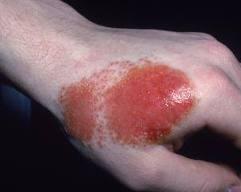 Contact Dermatitis Treatment