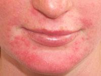 Dermatitis On Face