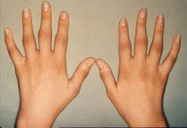 What Causes Rheumatoid Arthritis