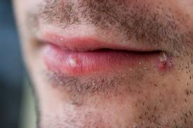 Cold Sores Remedies