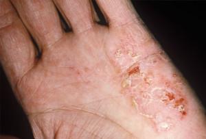 Eczema Skin Treatment