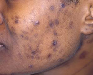 Post Acne Hyperpigmentation